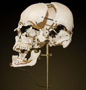 Beauchêne Skull