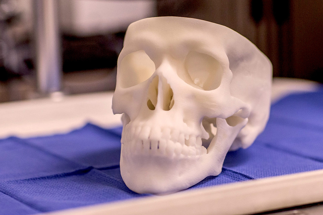 In the otolaryngology department, 3-D printed skulls prepare new doctors to perform procedures on patients, providing a training bridge between books and the bedside. Image from News: Latest News from the UVA School of Medicine.