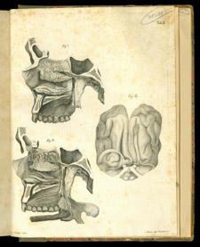 Scarpa, Anatomicarum annotationum…, tab II