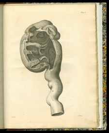Hunter, A Treatise on the Venereal Disease, plate 6