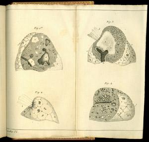 Laennec, De l'auscultation médiate…, plache II